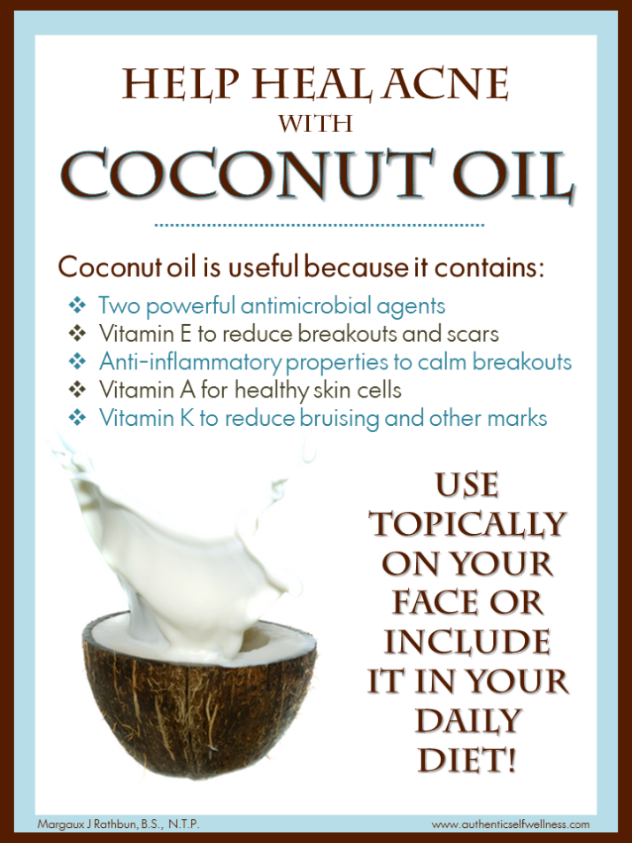 Help Heal Acne with Coconut Oil